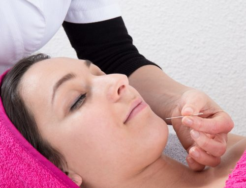 Cosmetic Acupuncture: Has Botox Met Its Match?